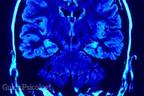 L'ipnosi come cura dei disturbi psicosomatici
