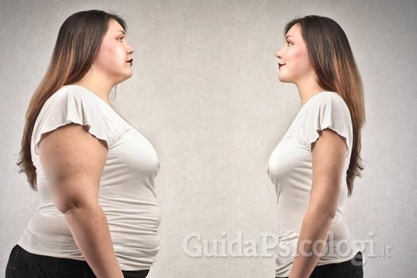 Obesità e chirurgia bariatrica: la valutazione psicologica